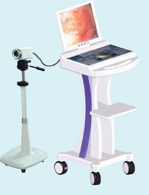 distributors electronic colposcope rsd3500