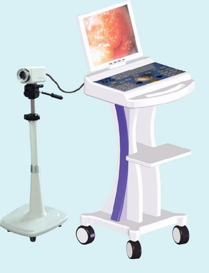 rsd3500 video colposcope