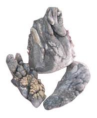 calcium lump