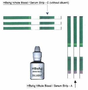 step hbsag blood serum test