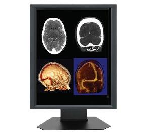 20 1inch 2mp megapixel lcd medical display monitors