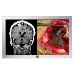 24inch 2 3mp lcd medical display monitor